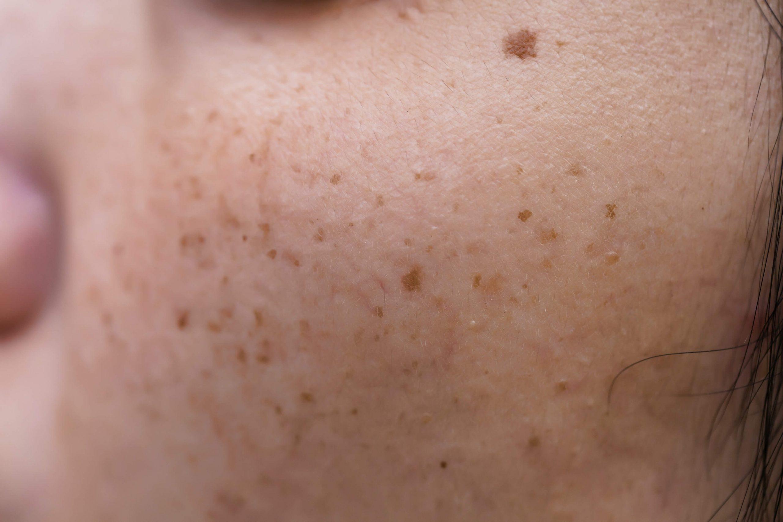 dermatologo valencia