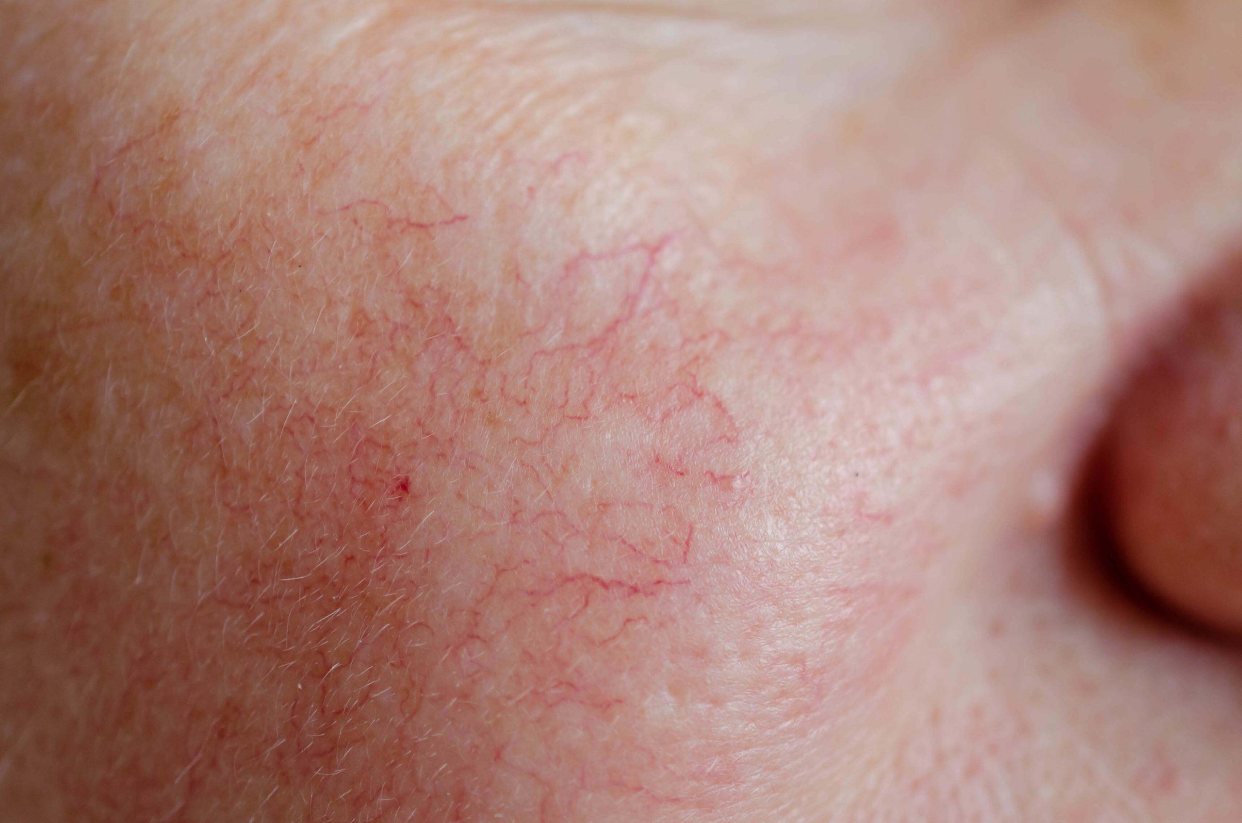 dermatologia valencia