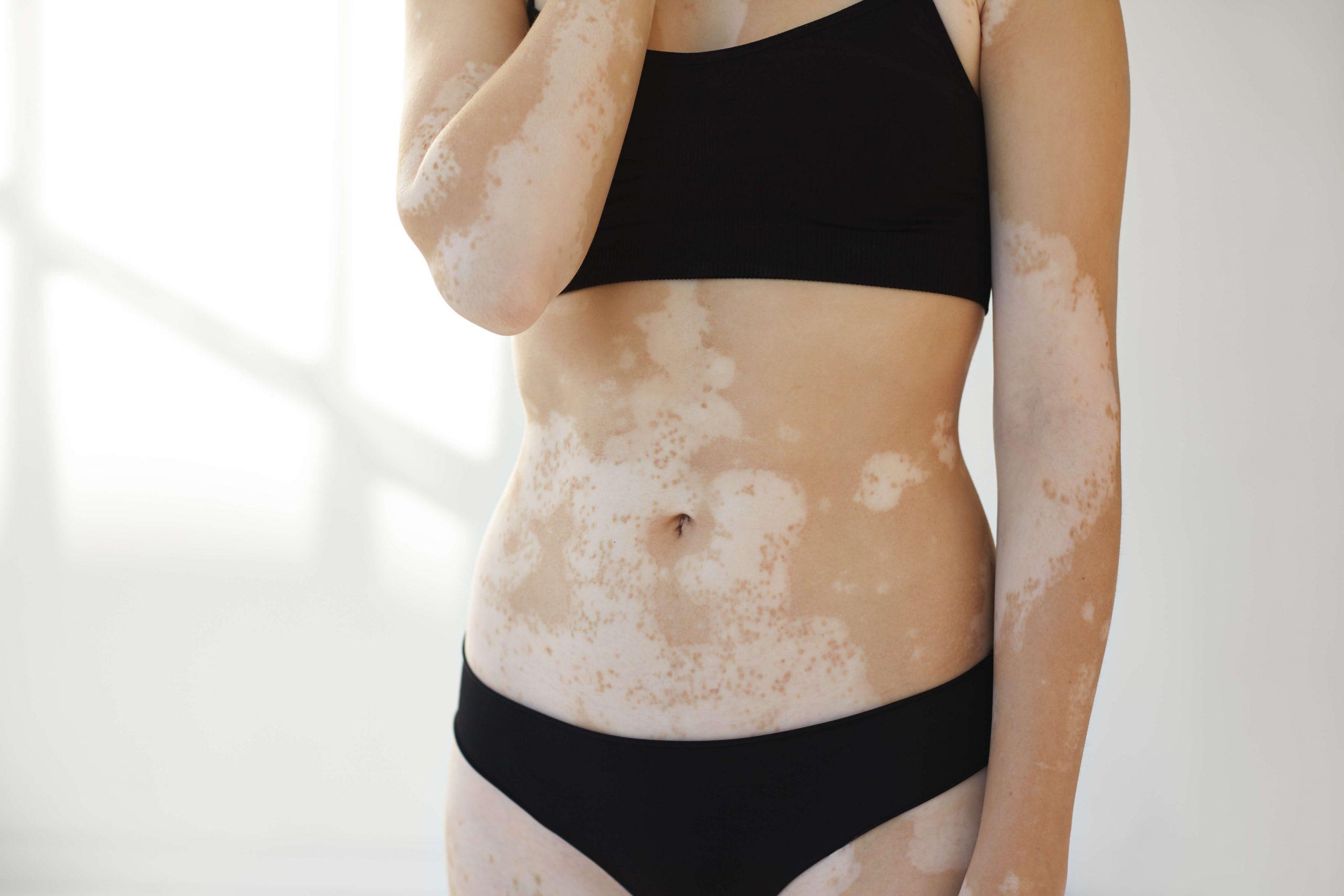 dermatologa valencia